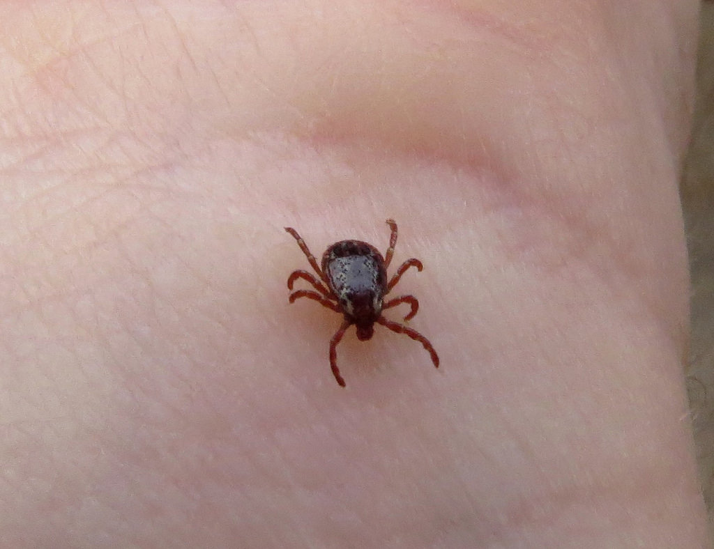Rocky Mountain spotted fever (RMSF) is a bacterial disease spread through the bite of an infected tick.
