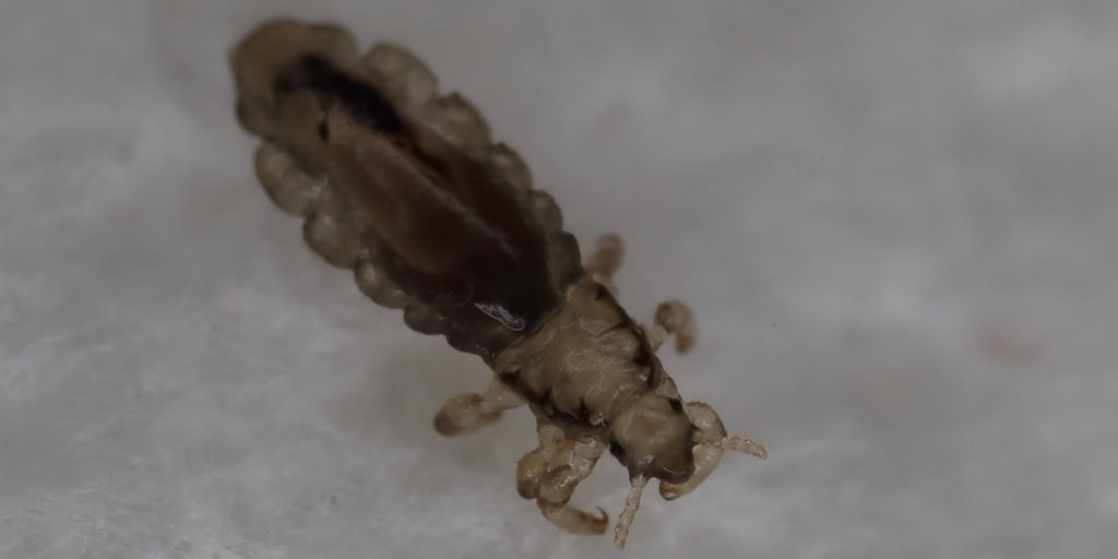 Head louse looks like a tick, but it isn't