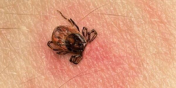 how-do-humans-get-lyme-disease.jpg