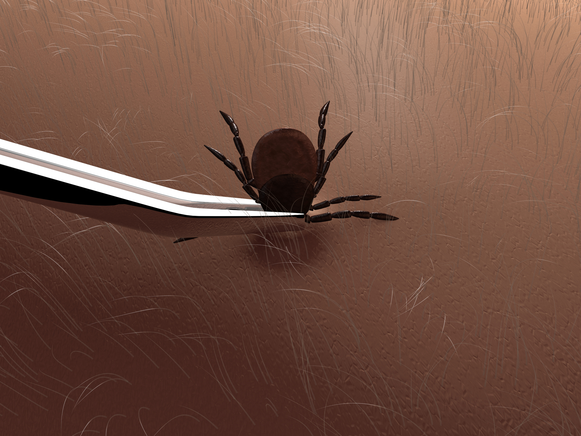 Use tweezers to remove ticks.