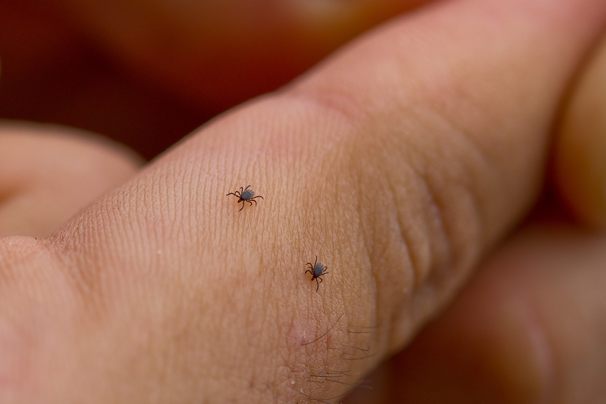 Where To Check For Ticks - Featured Image